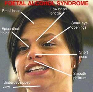 FASD adult facial chart